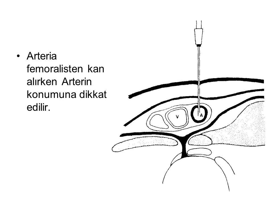 Arteria femoralisten kan alırken Arterin konumuna dikkat edilir.