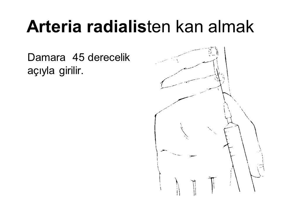 Arteria radialisten kan almak