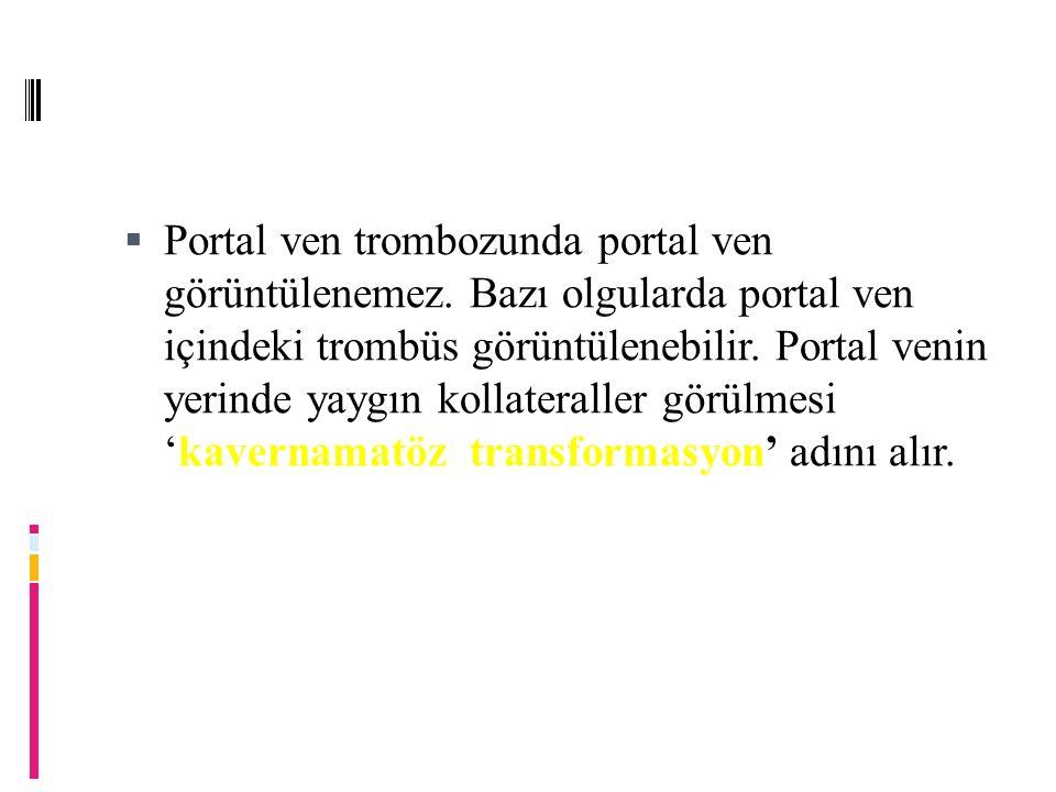Portal ven trombozunda portal ven görüntülenemez