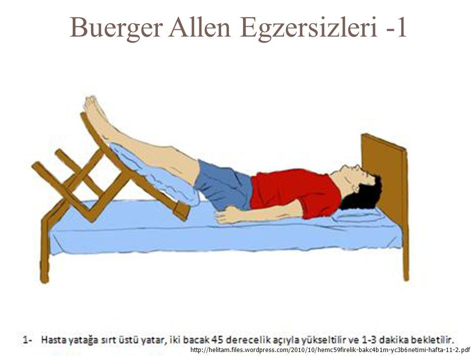 Buerger Allen Egzersizleri -1