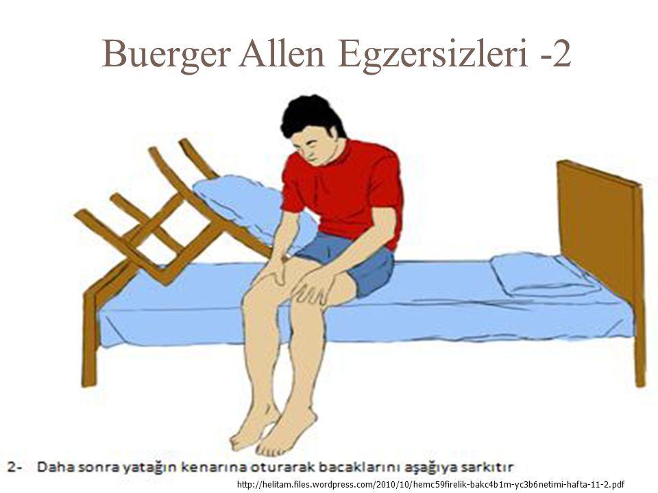 Buerger Allen Egzersizleri -2