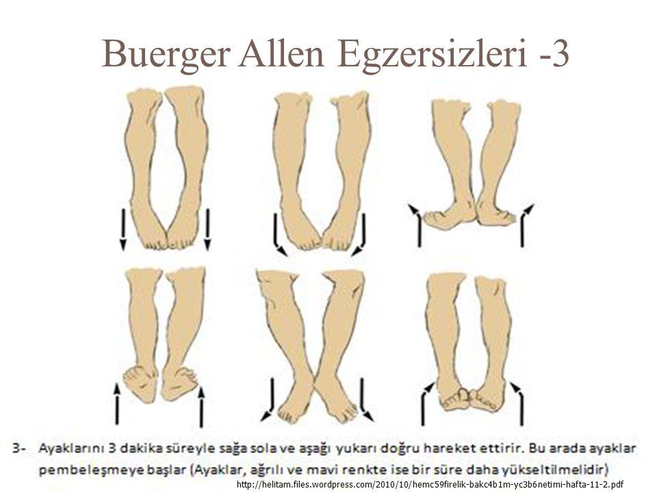 Buerger Allen Egzersizleri -3
