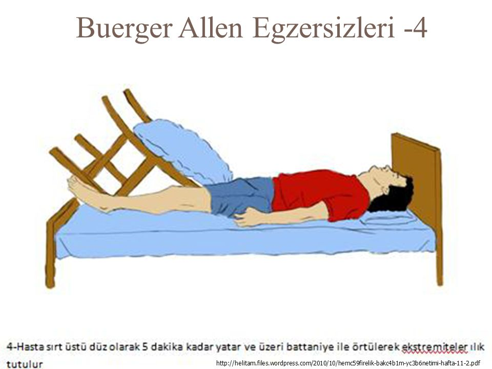 Buerger Allen Egzersizleri -4