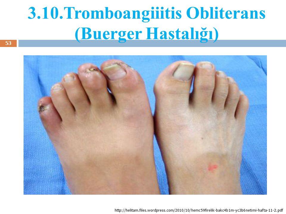 3.10.Tromboangiiitis Obliterans (Buerger Hastalığı)
