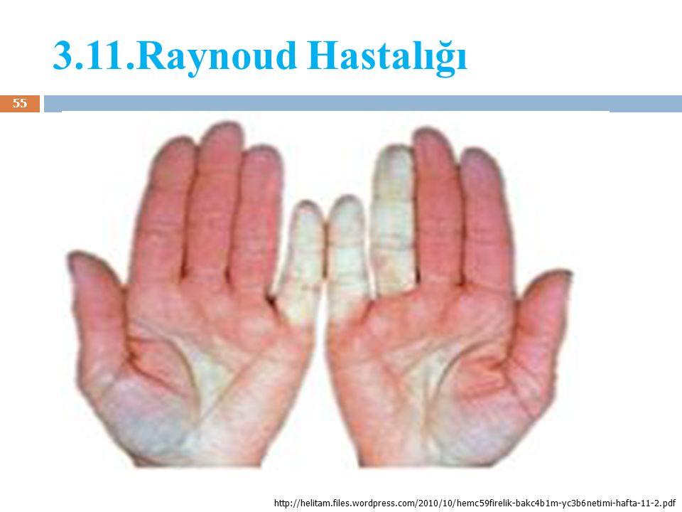 3.11.Raynoud Hastalığı http://helitam.files.wordpress.com/2010/10/hemc59firelik-bakc4b1m-yc3b6netimi-hafta-11-2.pdf.