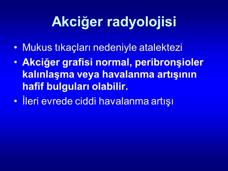 Akciğer radyolojisi Mukus tıkaçları nedeniyle atalektezi