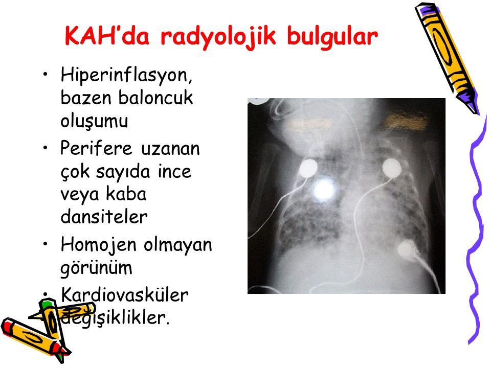 KAH'da radyolojik bulgular
