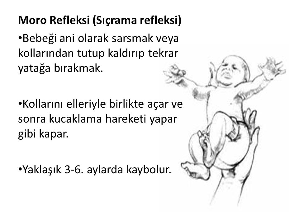 Moro Refleksi (Sıçrama refleksi)