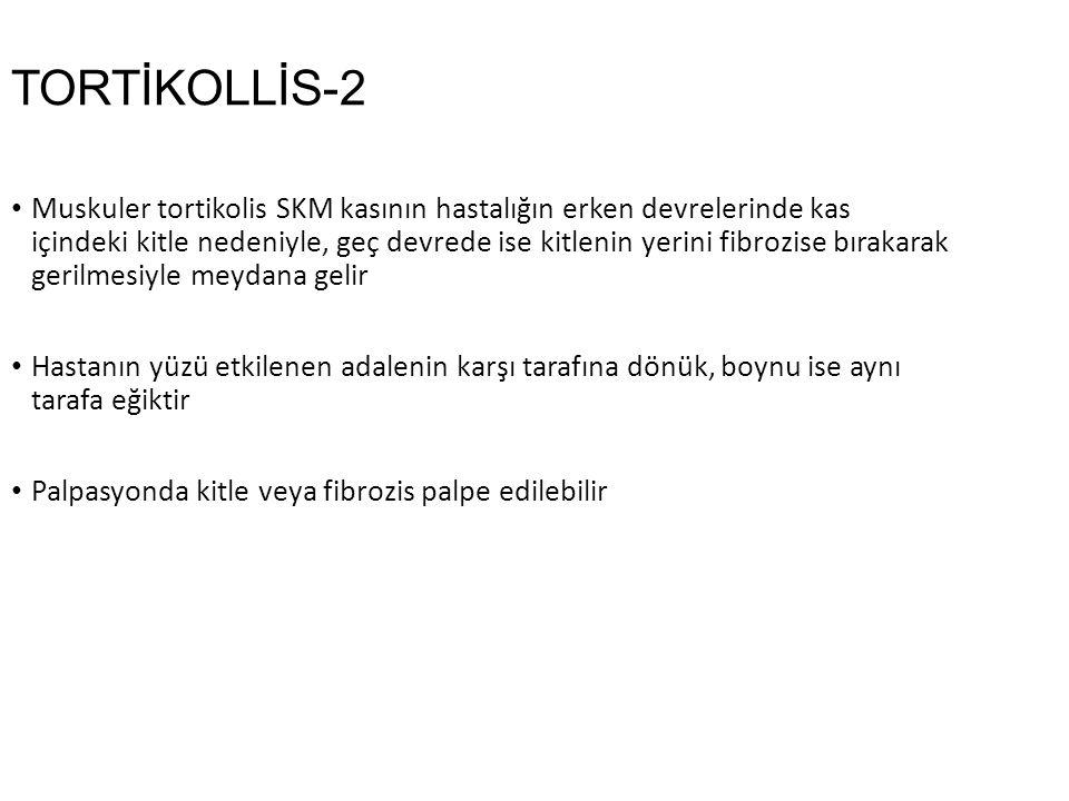 TORTİKOLLİS-2