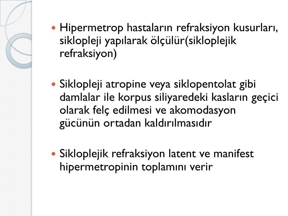 Hipermetrop hastaların refraksiyon kusurları, siklopleji yapılarak ölçülür(sikloplejik refraksiyon)