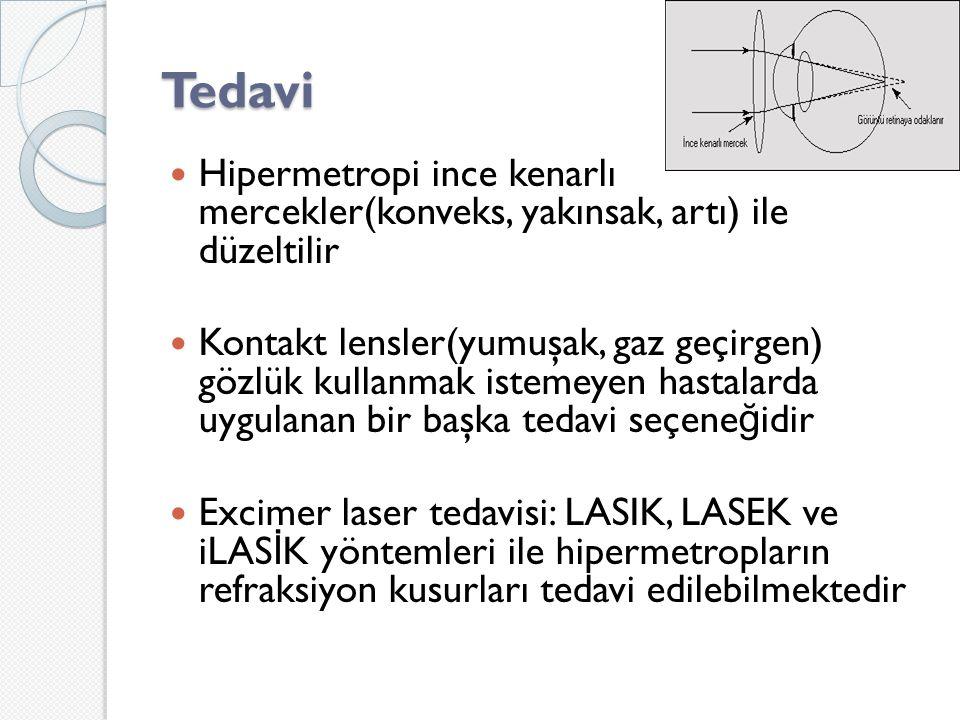 Tedavi Hipermetropi ince kenarlı mercekler(konveks, yakınsak, artı) ile düzeltilir.