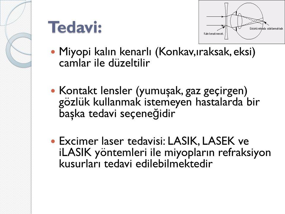 Tedavi: Miyopi kalın kenarlı (Konkav,ıraksak, eksi) camlar ile düzeltilir.