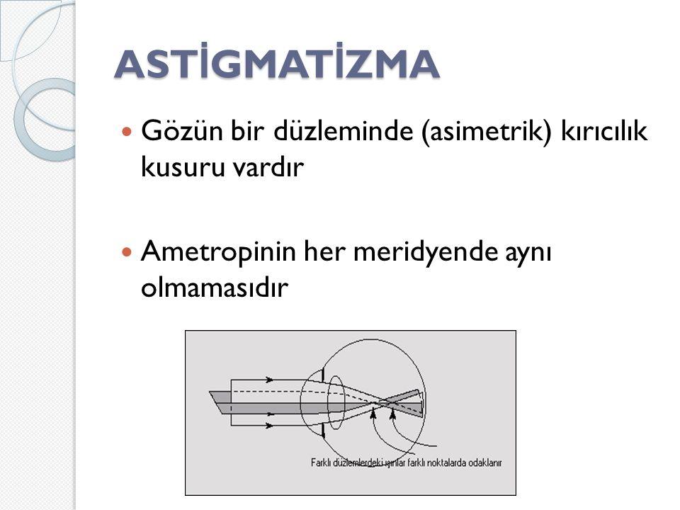 ASTİGMATİZMA Gözün bir düzleminde (asimetrik) kırıcılık kusuru vardır