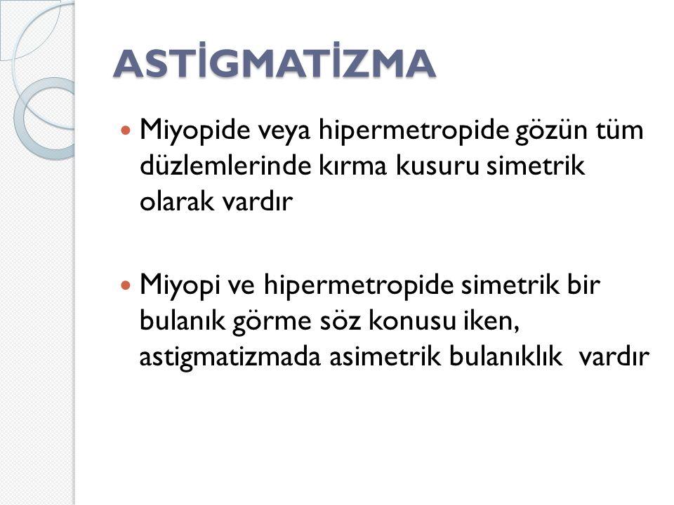 ASTİGMATİZMA Miyopide veya hipermetropide gözün tüm düzlemlerinde kırma kusuru simetrik olarak vardır.