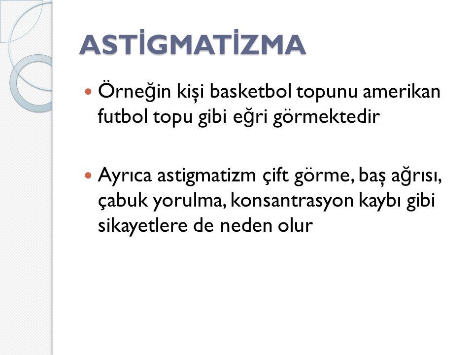 ASTİGMATİZMA Örneğin kişi basketbol topunu amerikan futbol topu gibi eğri görmektedir.