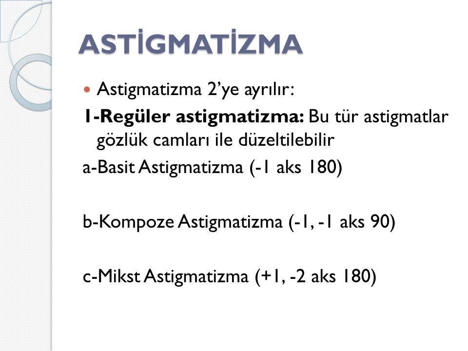 ASTİGMATİZMA Astigmatizma 2'ye ayrılır:
