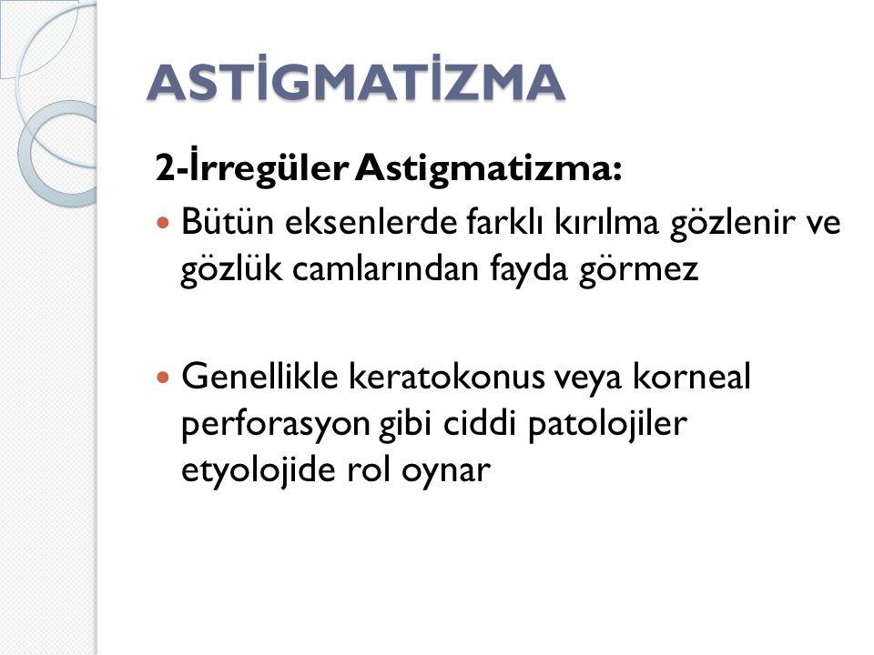 ASTİGMATİZMA 2-İrregüler Astigmatizma: