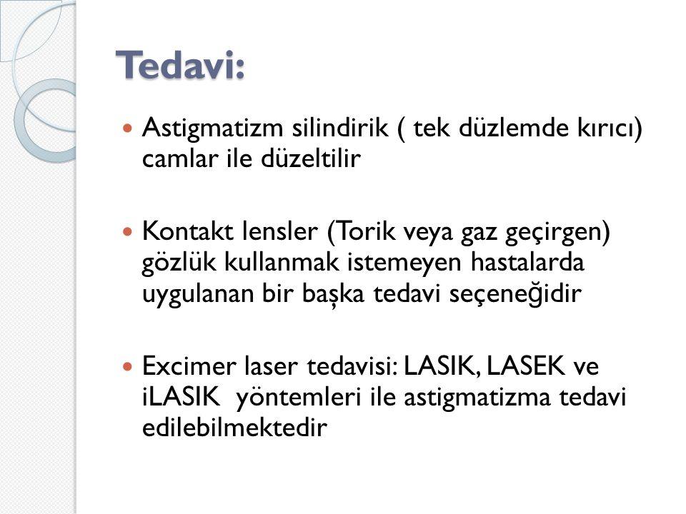 Tedavi: Astigmatizm silindirik ( tek düzlemde kırıcı) camlar ile düzeltilir.