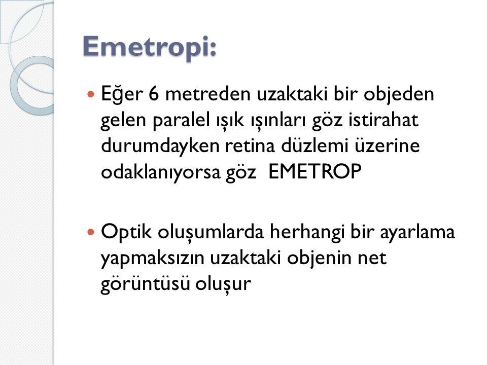 Emetropi: