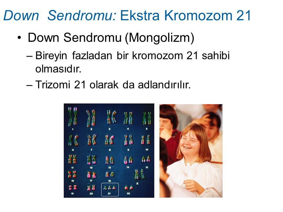 Down Sendromu: Ekstra Kromozom 21