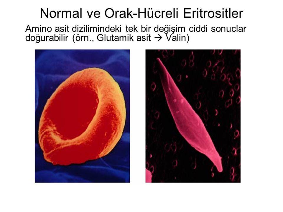 Normal ve Orak-Hücreli Eritrositler