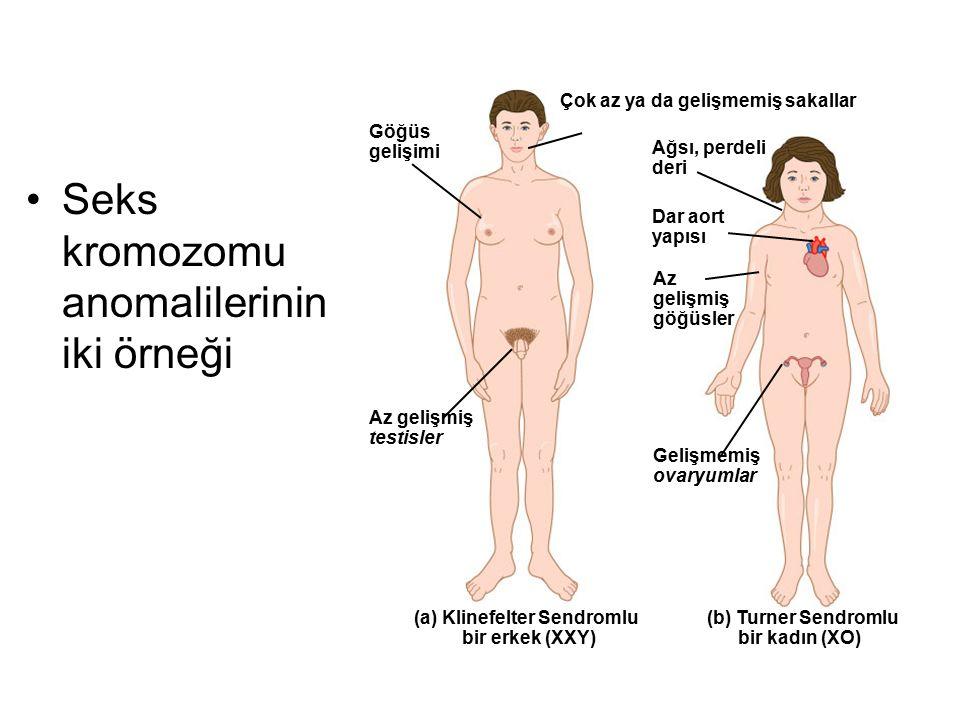 Seks kromozomu anomalilerinin iki örneği