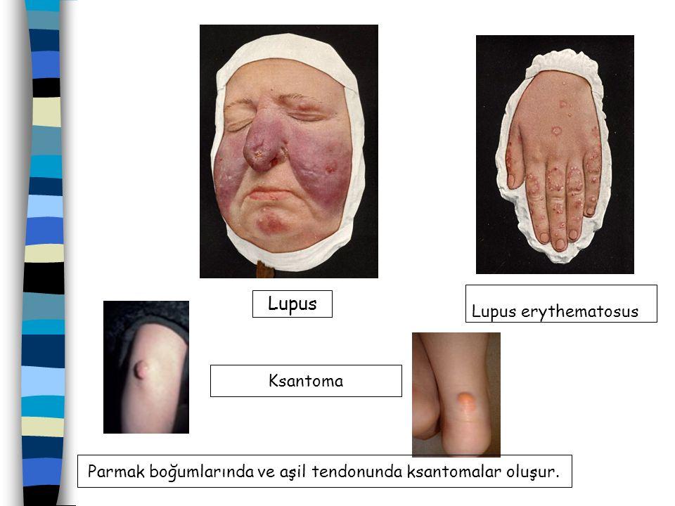 Parmak boğumlarında ve aşil tendonunda ksantomalar oluşur.