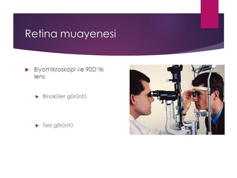 Retina muayenesi Biyomikroskopi ve 90D'lik lens Binoküler görüntü
