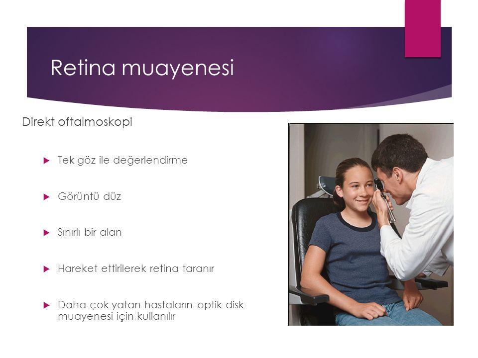 Retina muayenesi Direkt oftalmoskopi Tek göz ile değerlendirme
