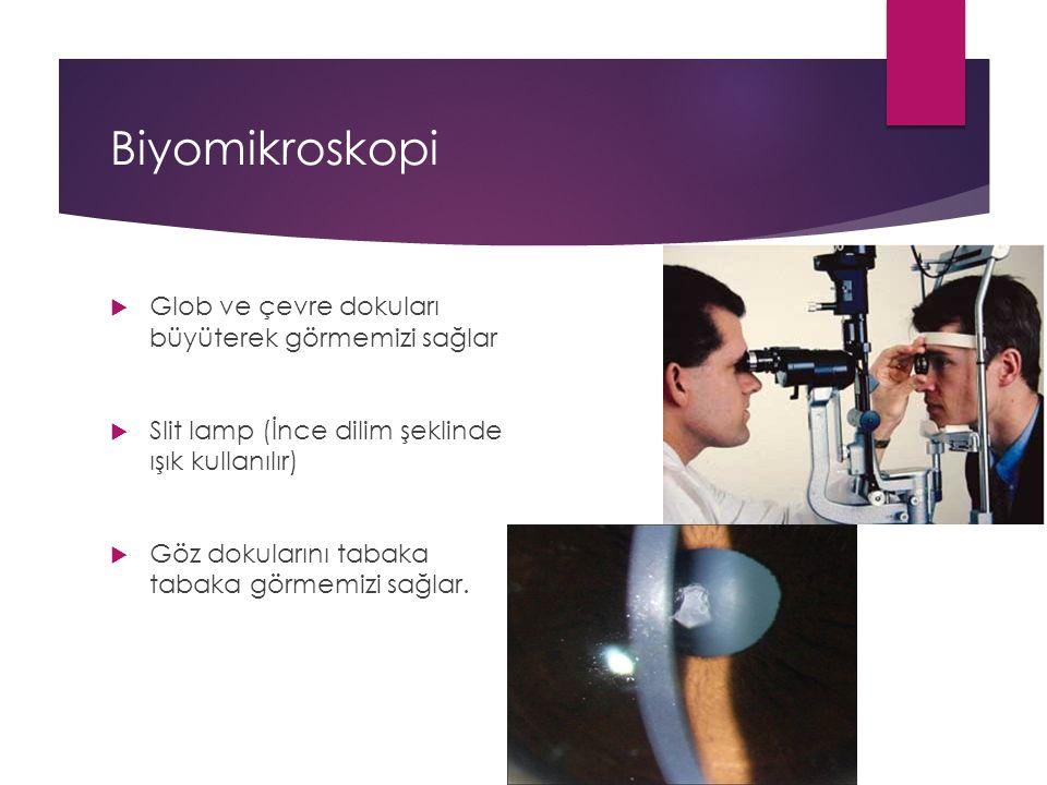 Biyomikroskopi Glob ve çevre dokuları büyüterek görmemizi sağlar