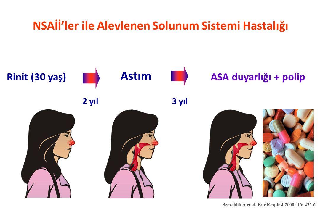 NSAİİ'ler ile Alevlenen Solunum Sistemi Hastalığı
