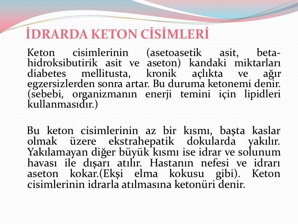 İDRARDA KETON CİSİMLERİ