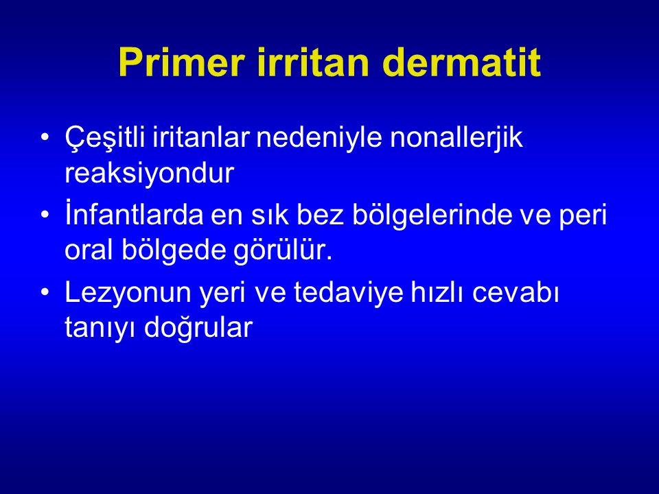 Primer irritan dermatit