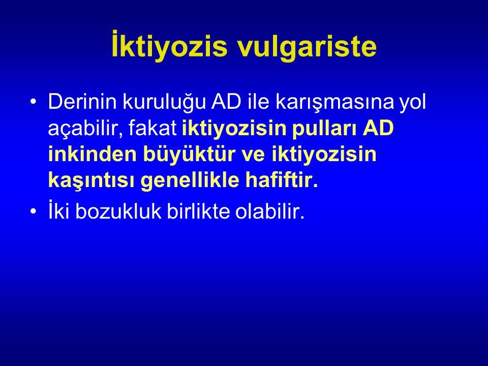 İktiyozis vulgariste