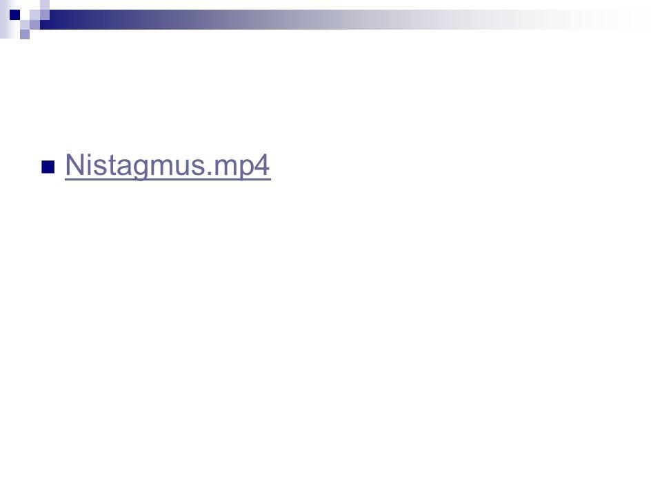 Nistagmus.mp4
