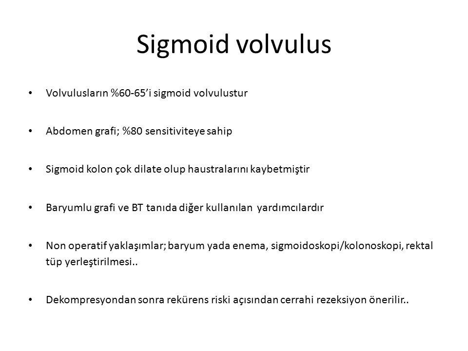 Sigmoid volvulus Volvulusların %60-65'i sigmoid volvulustur