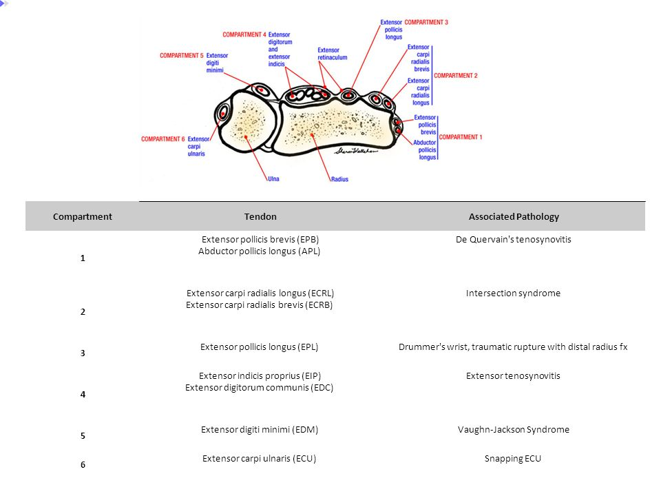 Compartment Tendon Associated Pathology 1 2 3 4 5 6