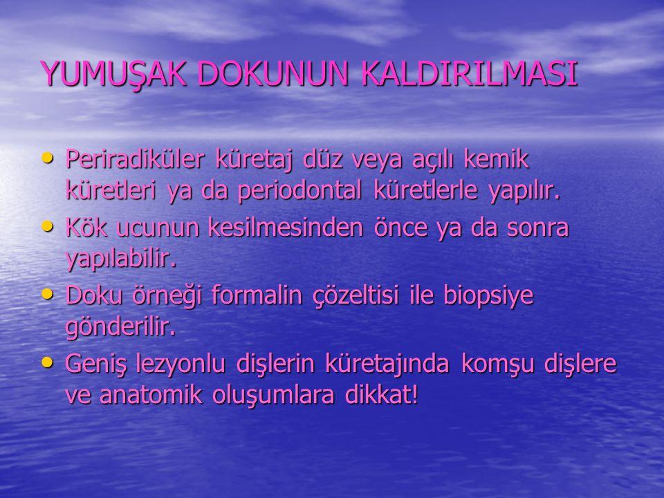 YUMUŞAK DOKUNUN KALDIRILMASI