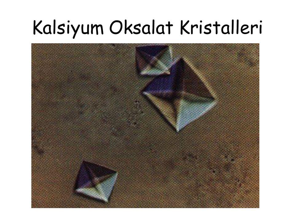 Kalsiyum Oksalat Kristalleri