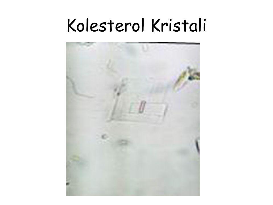 Kolesterol Kristali