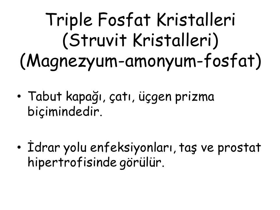 Triple Fosfat Kristalleri (Struvit Kristalleri) (Magnezyum-amonyum-fosfat)