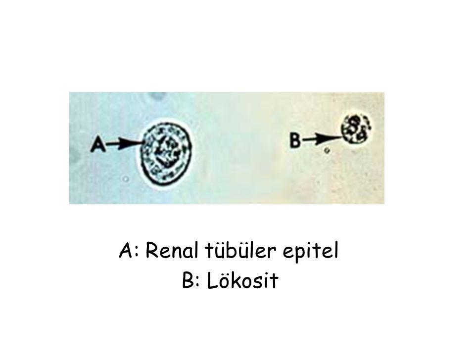 A: Renal tübüler epitel