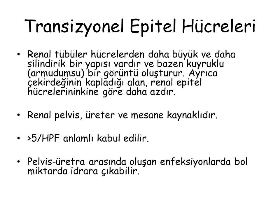 Transizyonel Epitel Hücreleri
