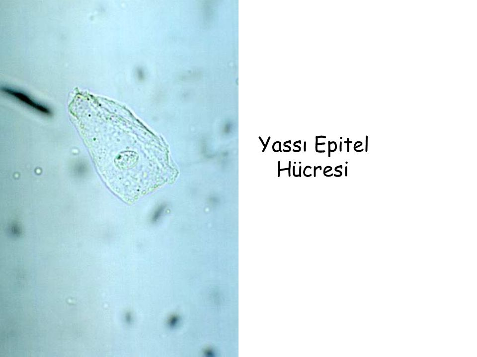 Yassı Epitel Hücresi