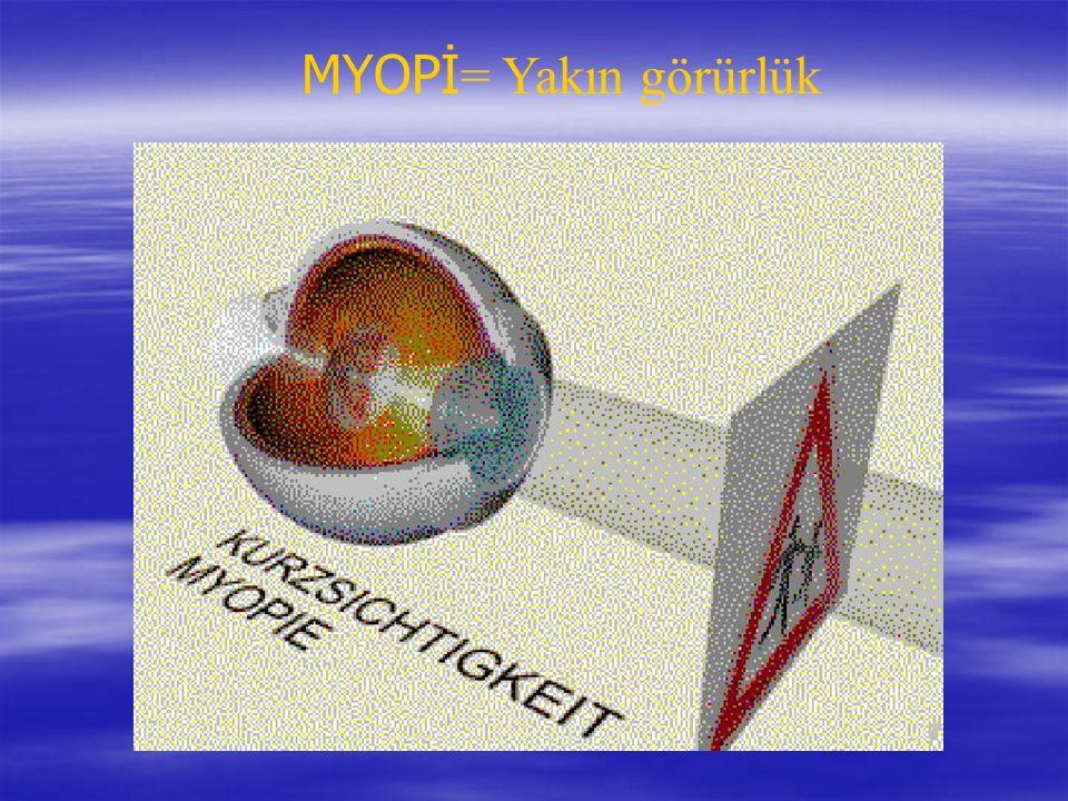 MYOPİ= Yakın görürlük