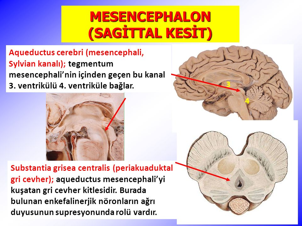 MESENCEPHALON (SAGİTTAL KESİT)