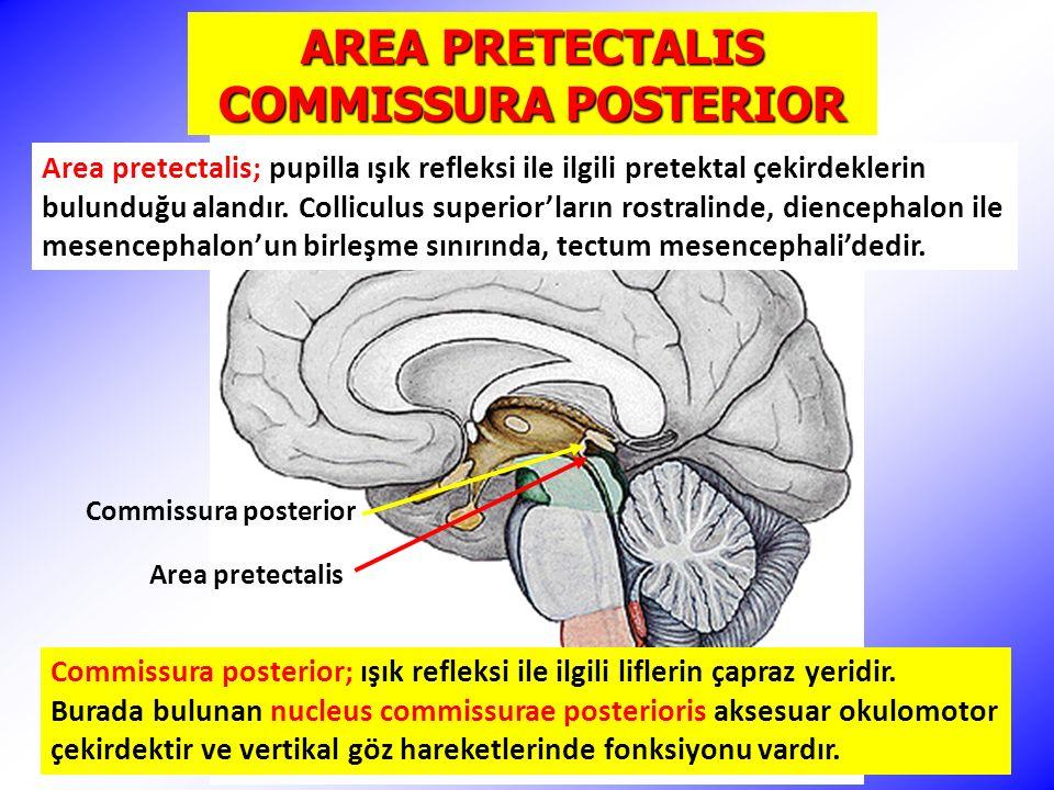 AREA PRETECTALIS COMMISSURA POSTERIOR