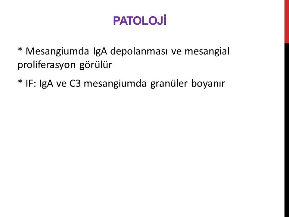 Patolojİ * Mesangiumda IgA depolanması ve mesangial proliferasyon görülür * IF: IgA ve C3 mesangiumda granüler boyanır