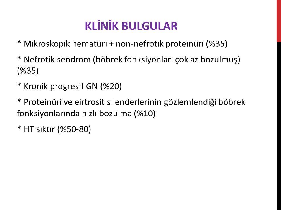 KLİNİK BULGULAR * Mikroskopik hematüri + non-nefrotik proteinüri (%35)