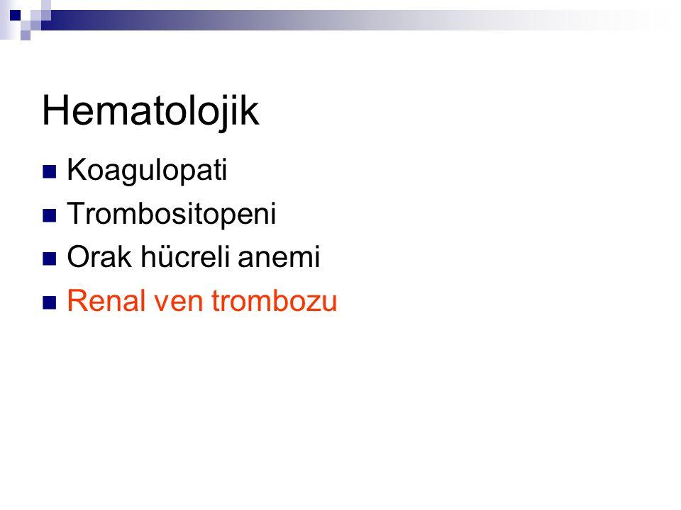 Hematolojik Koagulopati Trombositopeni Orak hücreli anemi